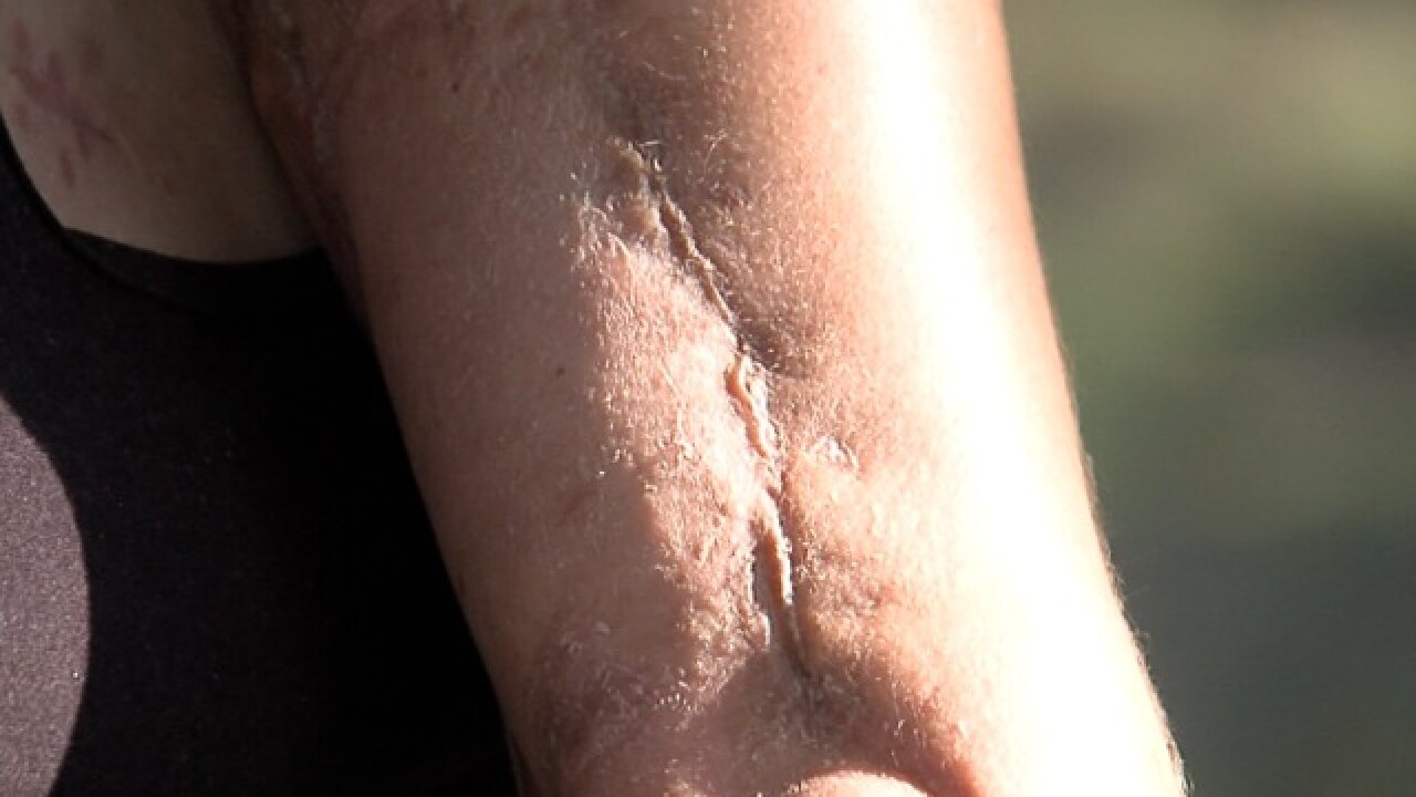 Woman continues fight with flesh-eating bacteria