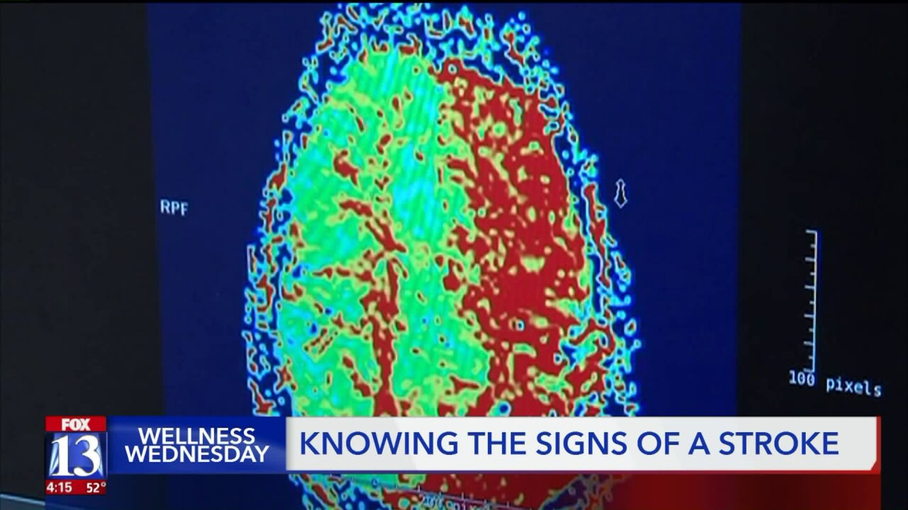 Wellness Wednesday: Are you at risk for stroke? How you can reduce your risk of a brainattack