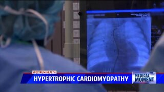 Medical Moment: Spectrum Health cardiovascular care