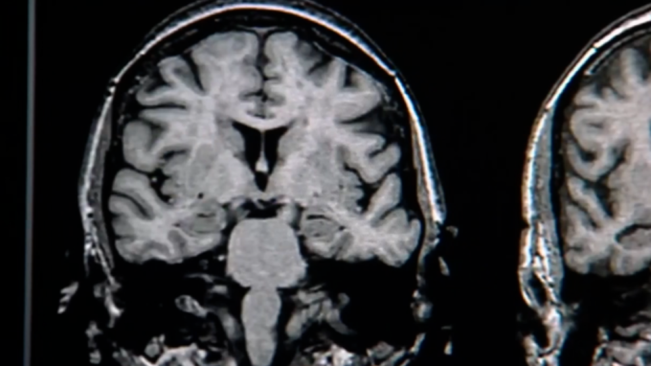USF brainscan