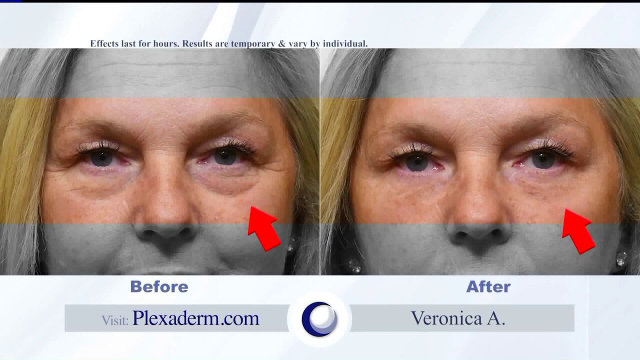 Look and feel younger with Plexaderm