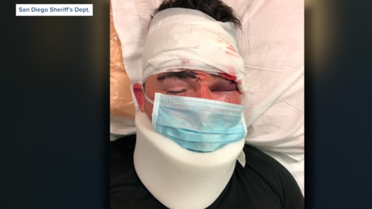 Vista deputy attacked