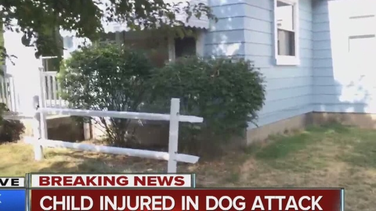 Boy attacked by dog in his own home