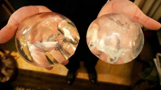 FDA links breast implants to rare cancer, 9 deaths