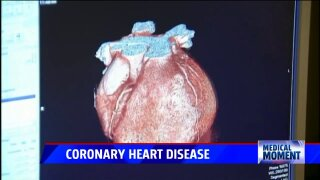 Medical Moment: Protected PCI and Coronary Heart Disease Part 1