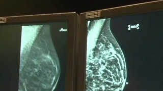 Women's Health Week: Everything you need to know about breast health