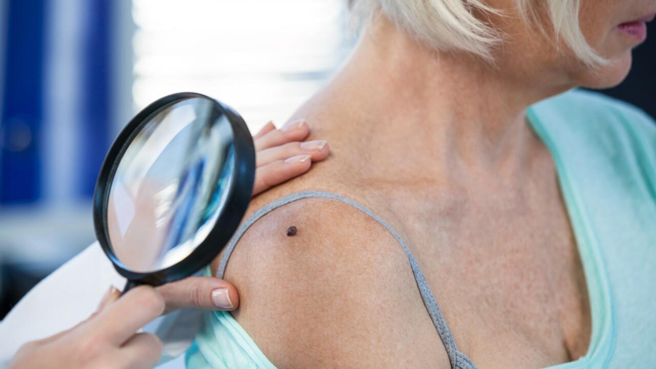 Free skin checks at Virginia Dermatology & Skin Cancer Center on May19