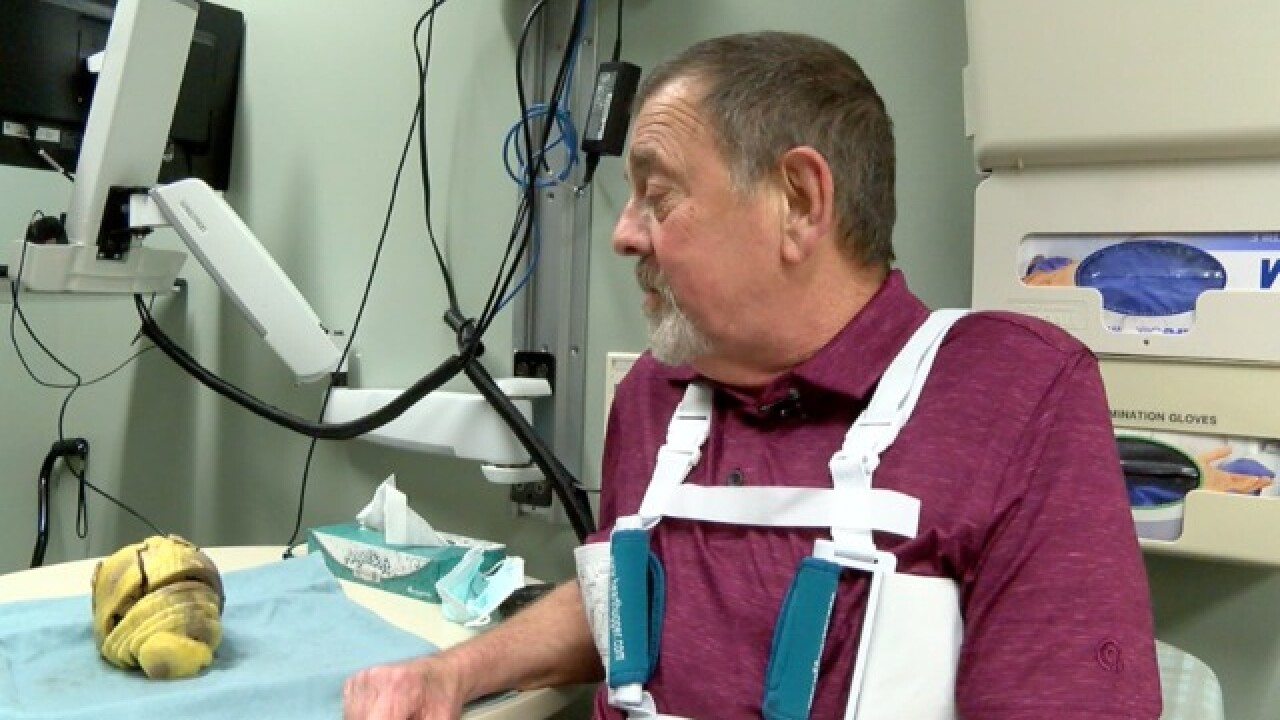 Transplant recipients say goodbye to old hearts