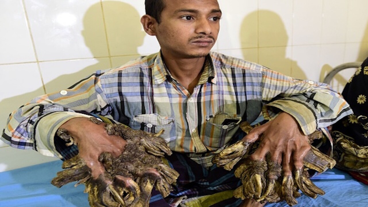 Bangladesh's 'Tree man' has his hands back