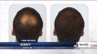 Have a full head of hair again withKerafy