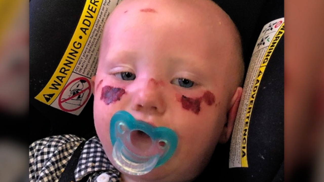 baby with sunblock burns
