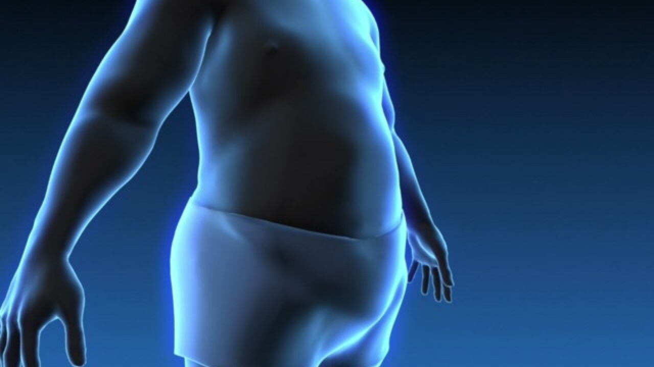 Study highlights stigma of weight loss surgery