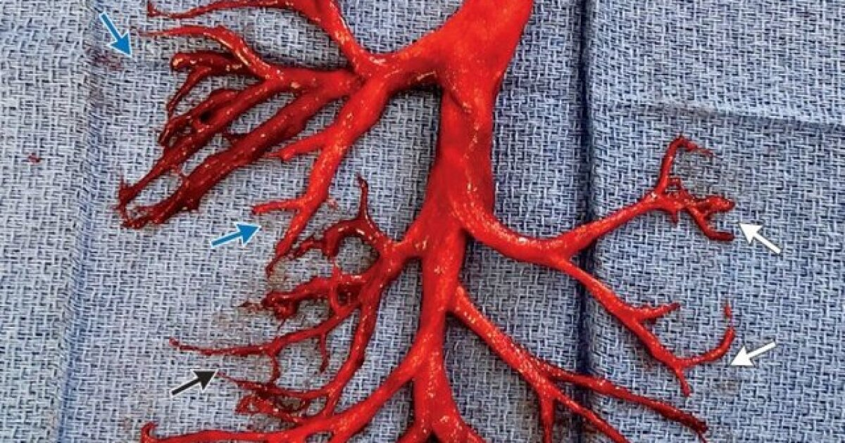 Man coughs up astonishing blood clot shaped like a bronchial tree