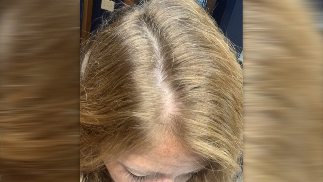 Some COVID-19 survivors report unexpected hair loss months after their battle with the virus