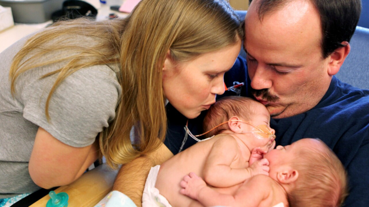 Formerly conjoined Ind. twins turn 2 years old