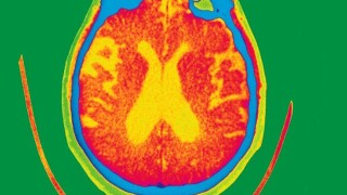 Have scientists found a game-changer for Alzheimer's?