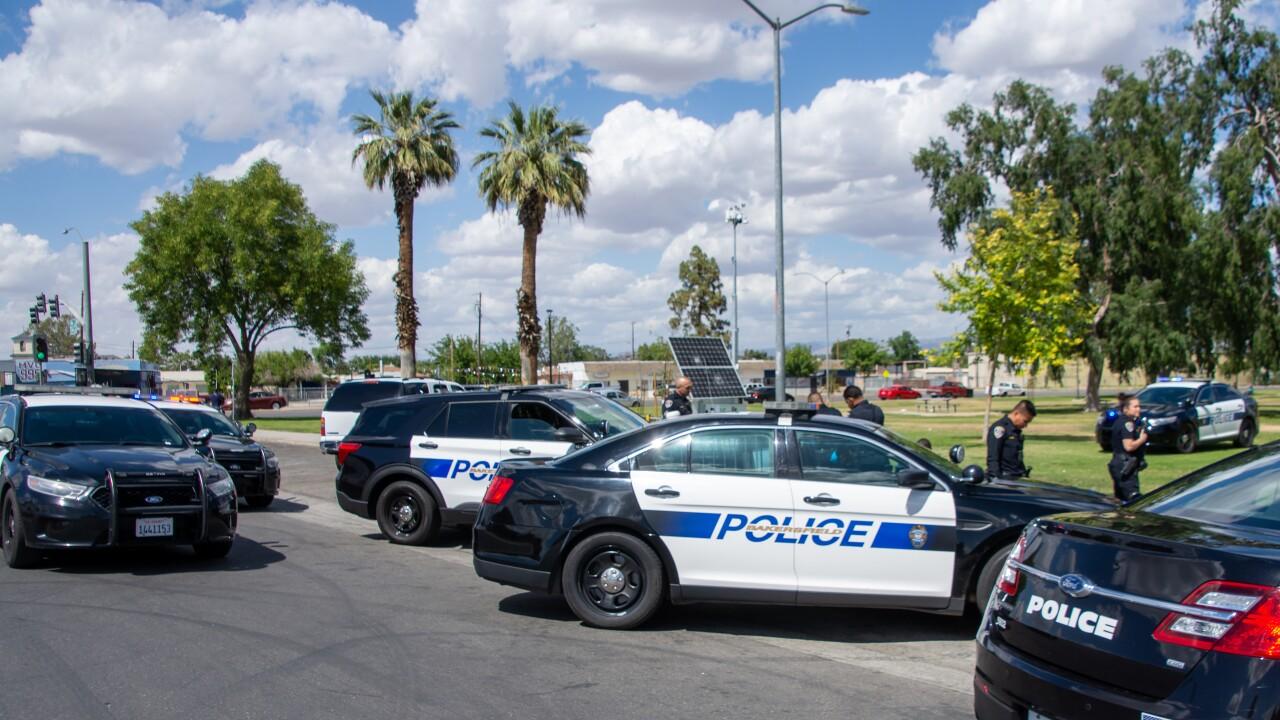 Bakersfield Police Broken Bones