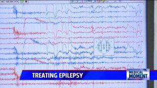 Treating Epilepsy