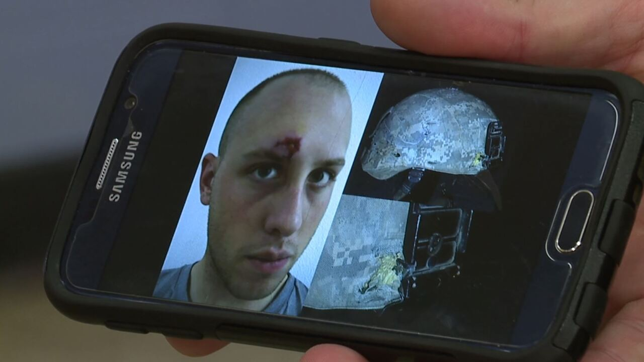 Brent Matchison picture of his head wound and helmet
