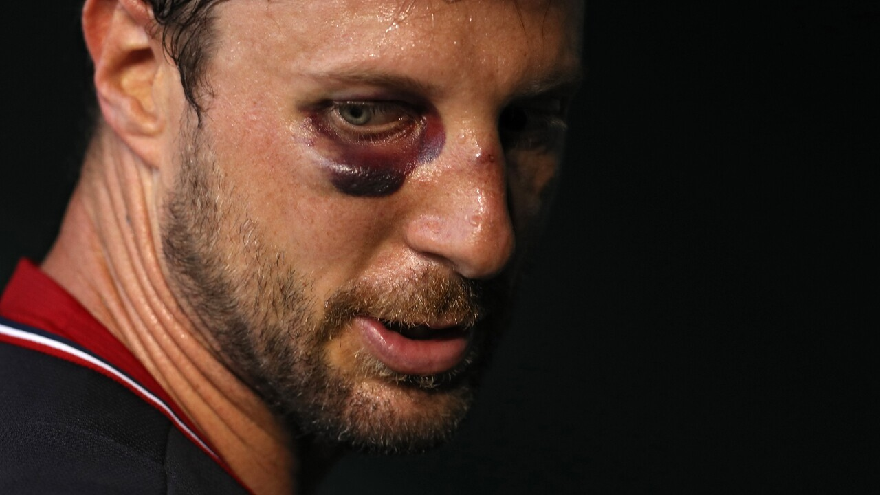 Battered batter-baffler: Nationals' Max Scherzer dazzles with black eye, broken nose