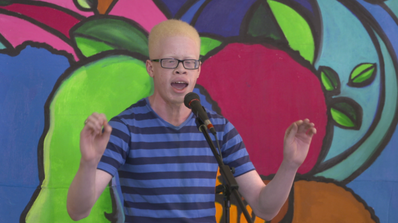 Norfolk student gains national attention after performance on albinism, bullying