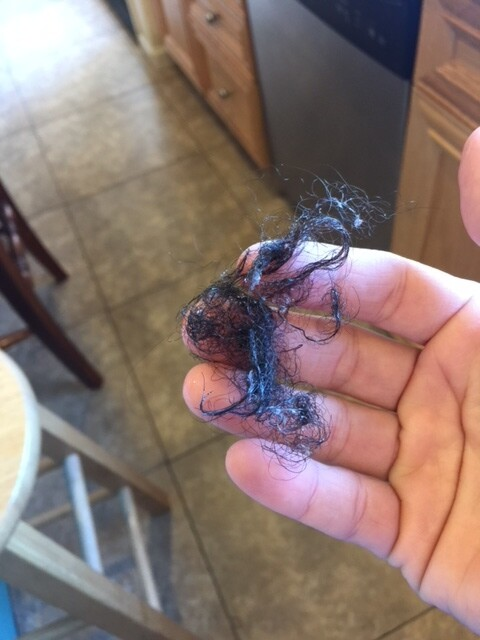 Monat users report hair and scalp damage