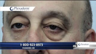 Plexaderm gets rid of fine lines, wrinkles, crows feet, and more