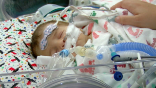 baby with CDH at John Hopkins All Children's Hospital.png