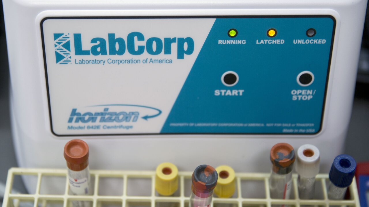 Labcorp results time