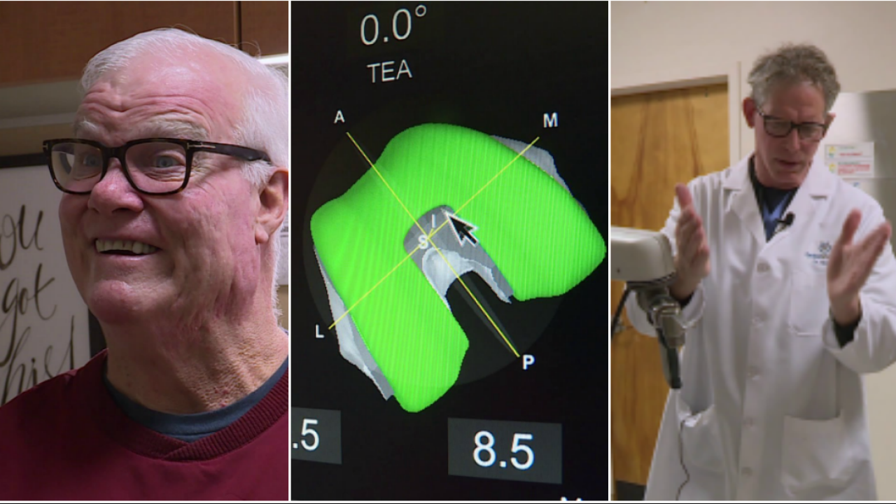 New knee replacement technology uses CT scans to create 'perfect' artificialjoint