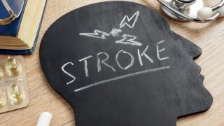 5 Things You Should Know To Avoid Stroke