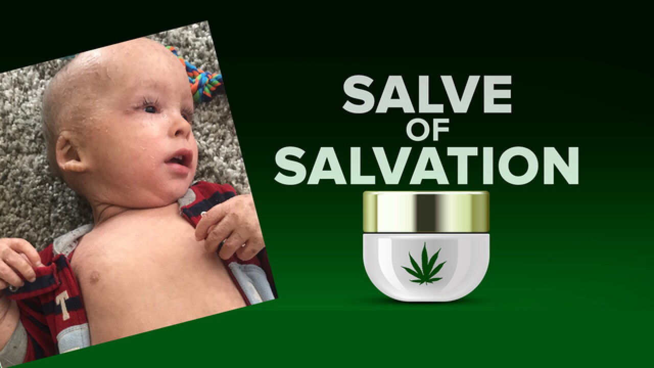 Hope grows for Baby Carter: Ichthyosis symptoms improved with cannabis cream
