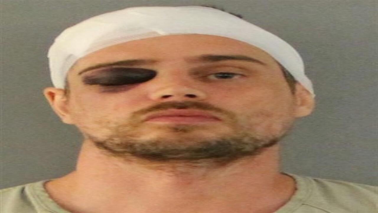 Florida burglar beat with own weapon
