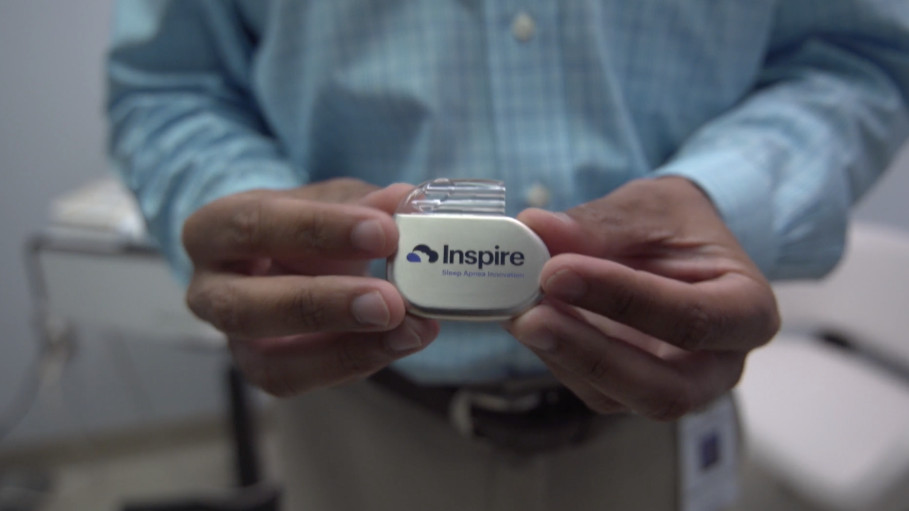 """""""Inspire"""" is an implant to treat sleep apnea, which has been approved by the FDA. It first came to prominence in Europe more than a decade ago, but is now starting to gain traction in the U.S."""