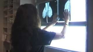 Your Healthy Family: UCHealth oncologist thrilled with new breast cancer treatment guidelines
