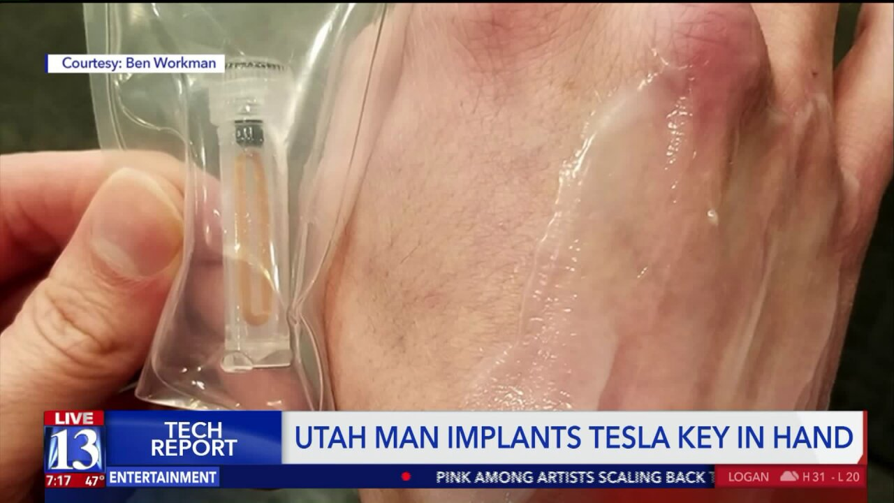 Utah man implants Tesla key and other chips into hands