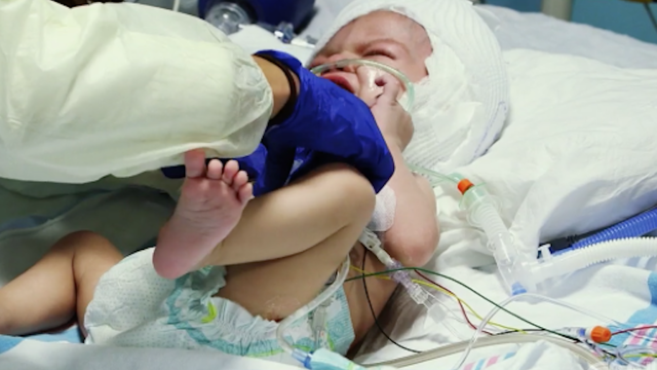 Formerly conjoined twins set for fastest recovery