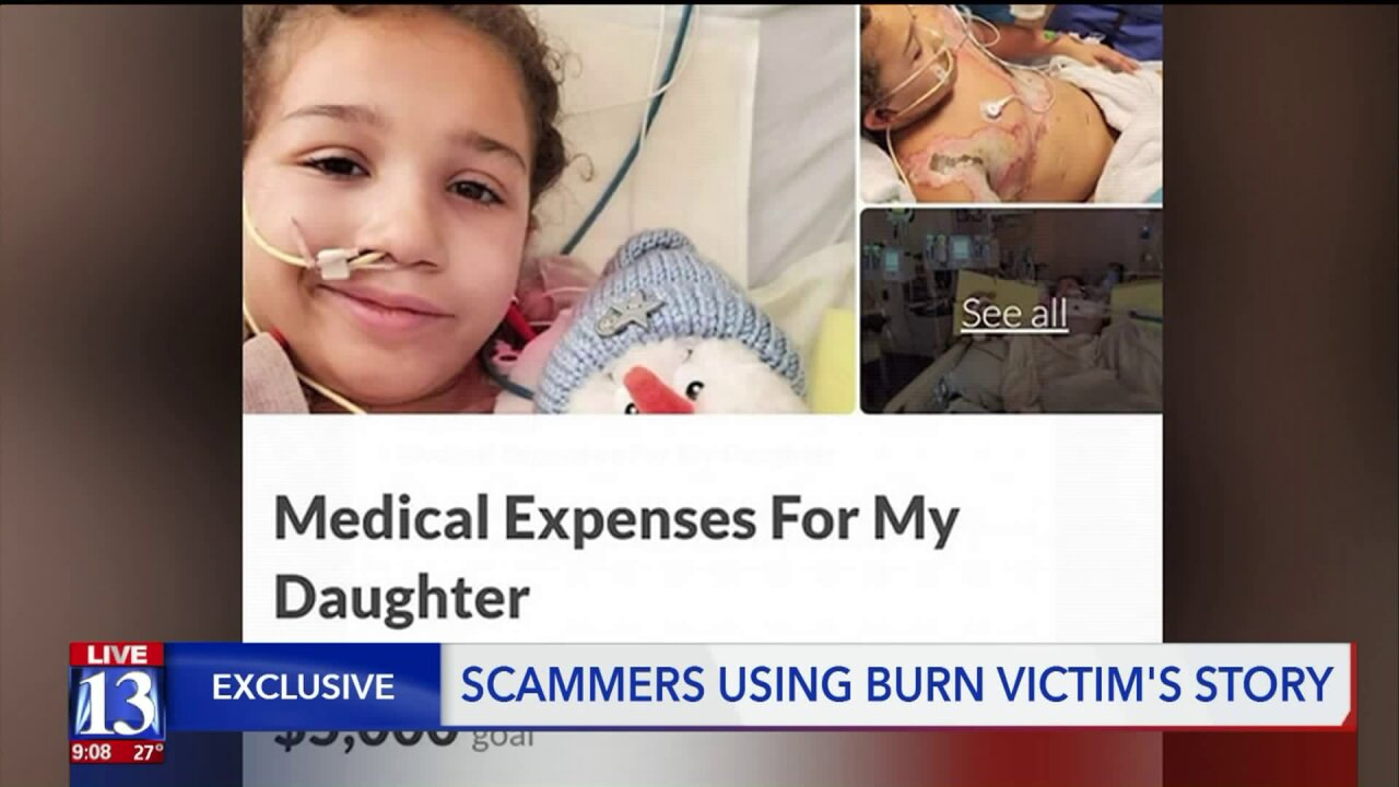 Scammers attempted to profit off of a young girl who was severelyburned