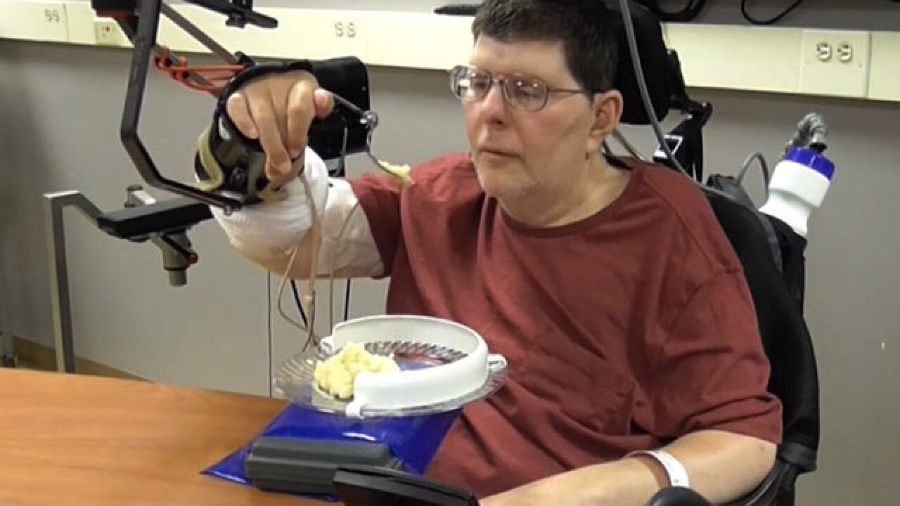Paralyzed man regains hand movements with experimental device