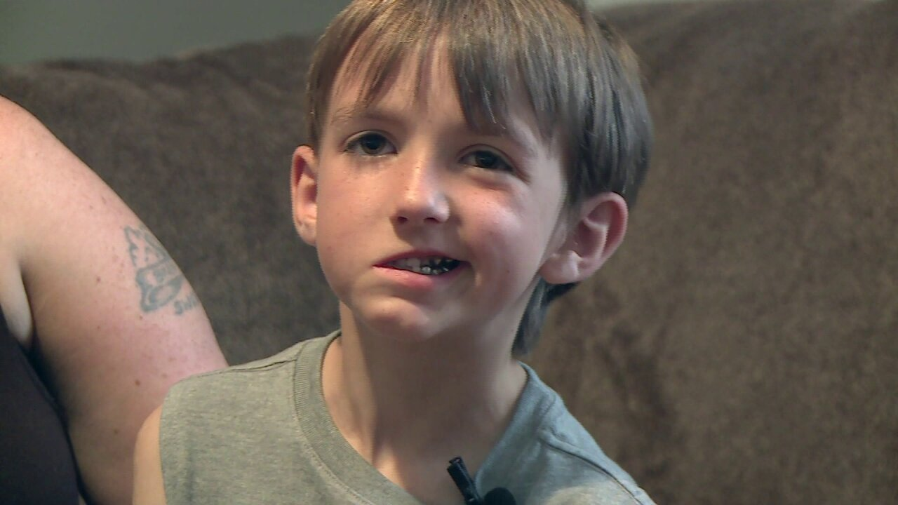 Hopewell boy born with facial palsy undergoes final surgery to help correctsmile