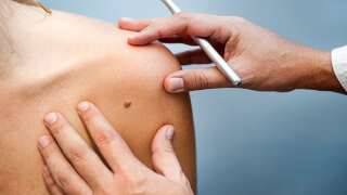 Save Your Skin: 7 Skin Cancer Warning Signs You Shouldn't Ignore