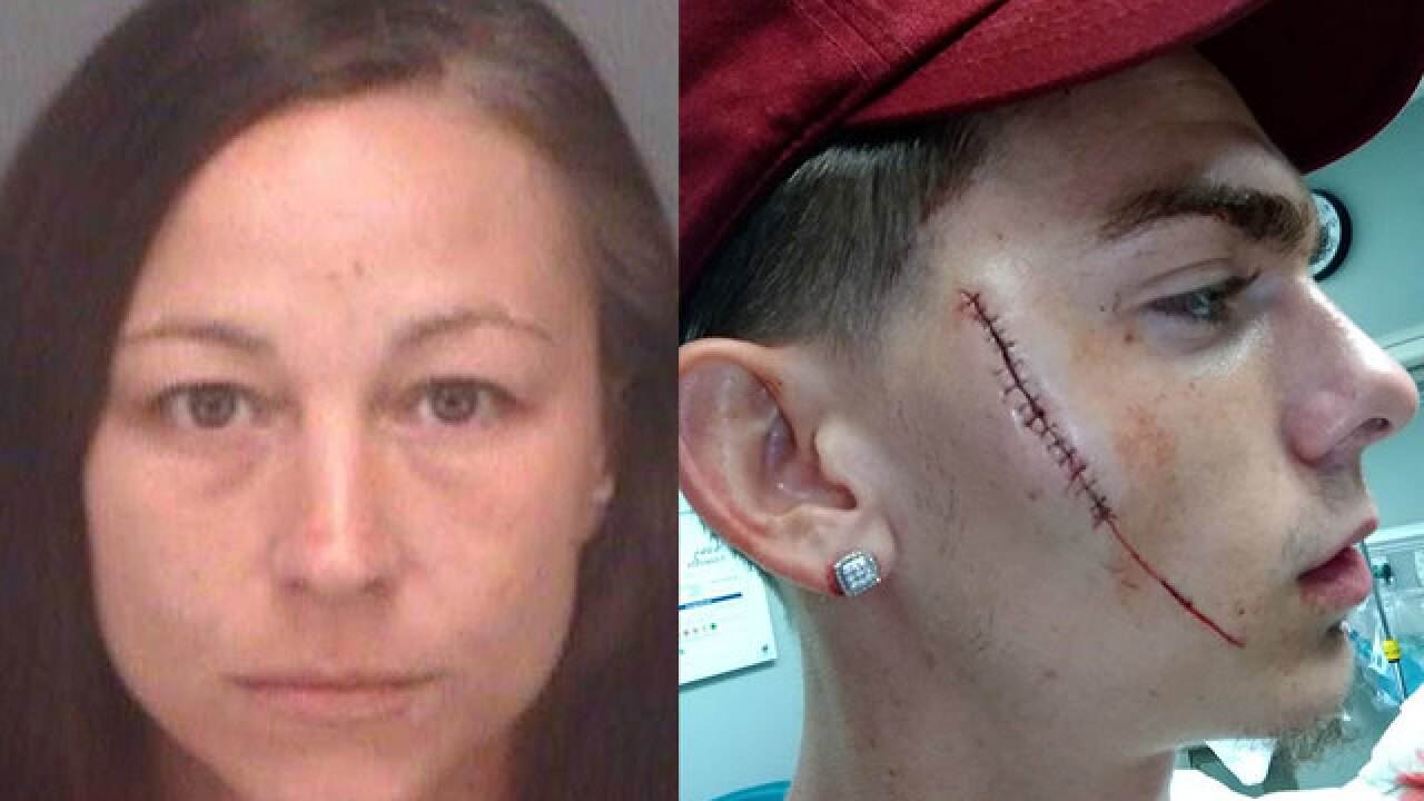 Woman slashed man in face on Florida beach