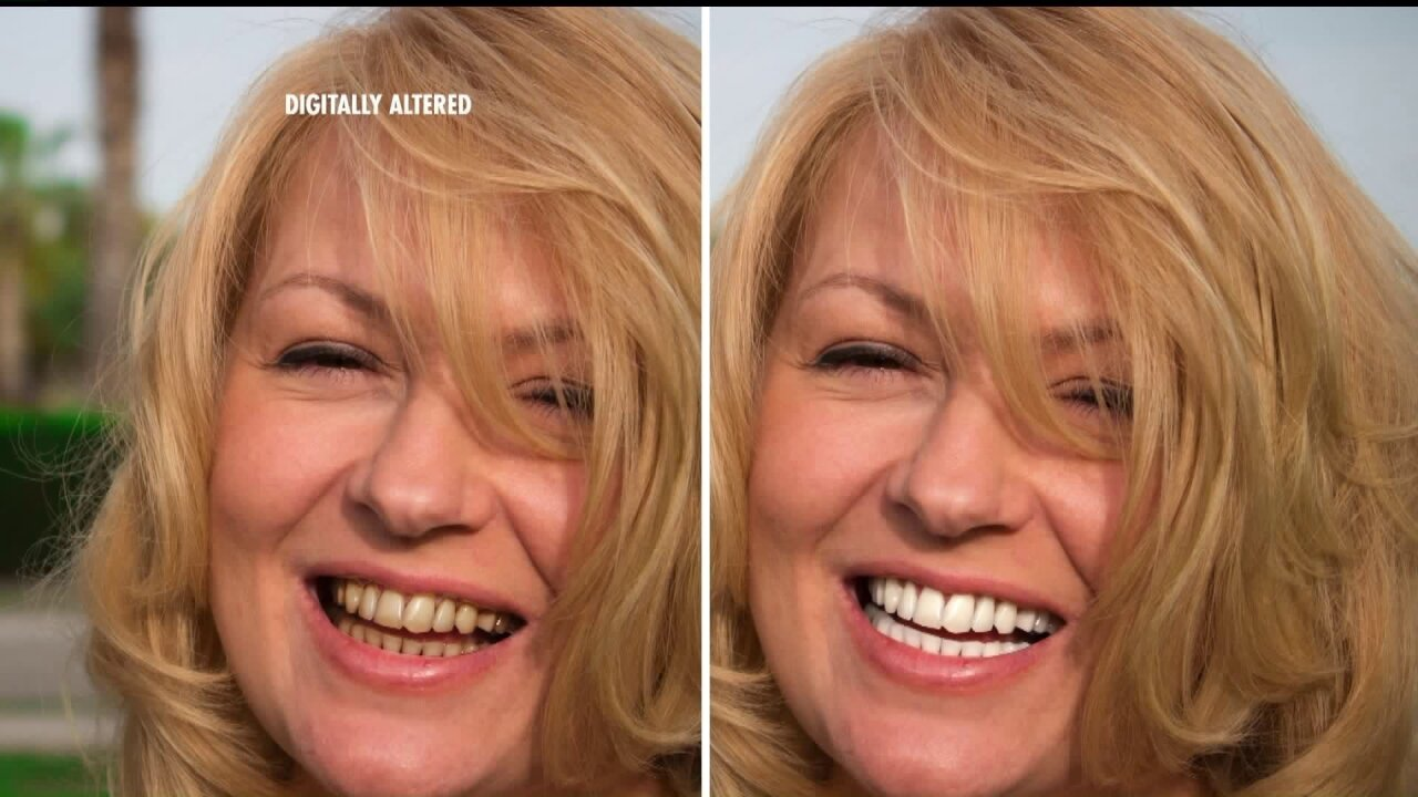 Get visibly whiter teeth in justminutes