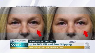 A way to get rid of under eye bags and wrinkles in just minutes on CoastLive