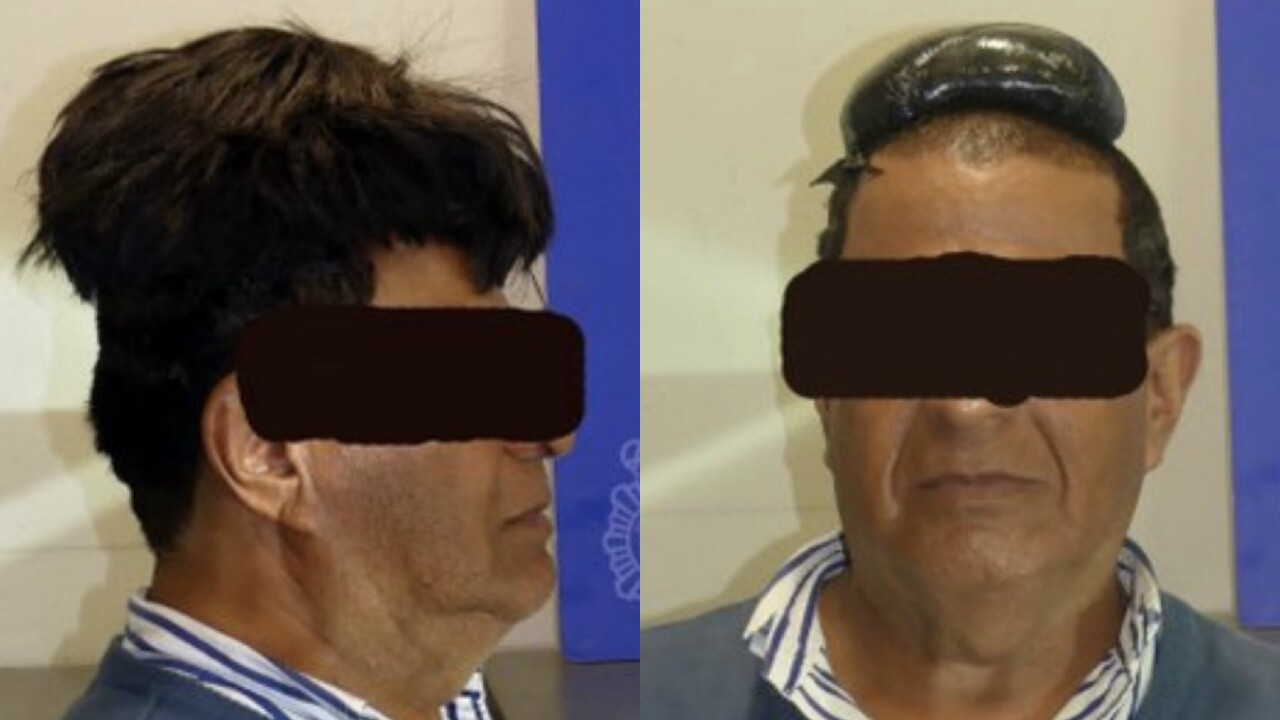 Spanish police arrest cocaine bigwig with drugs hidden under ill-fitting toupee