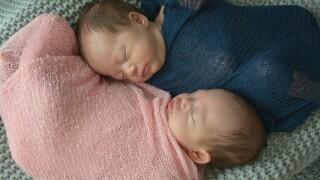 Rare twins birth