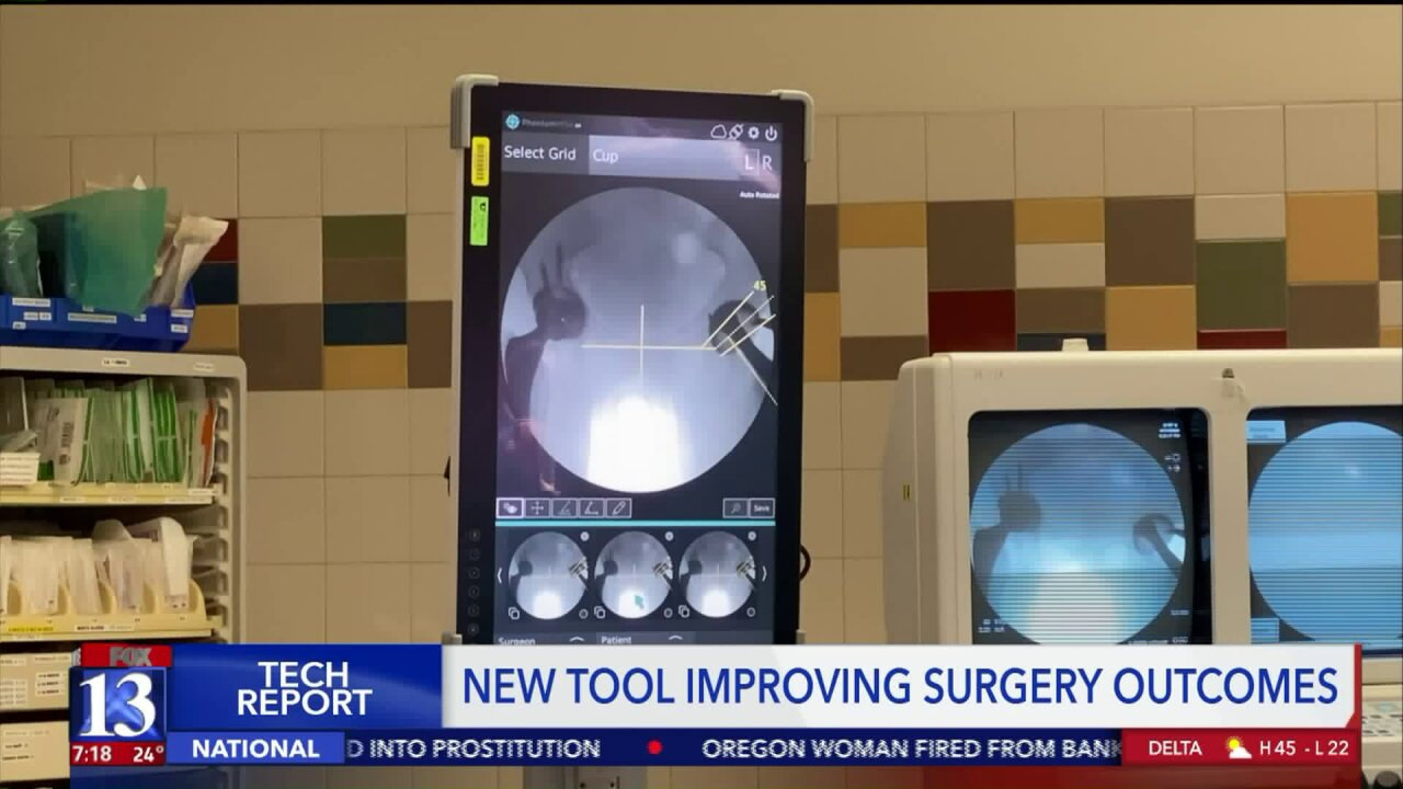 University of Utah Health using OrthoGrid tech to improve surgeryoutcomes
