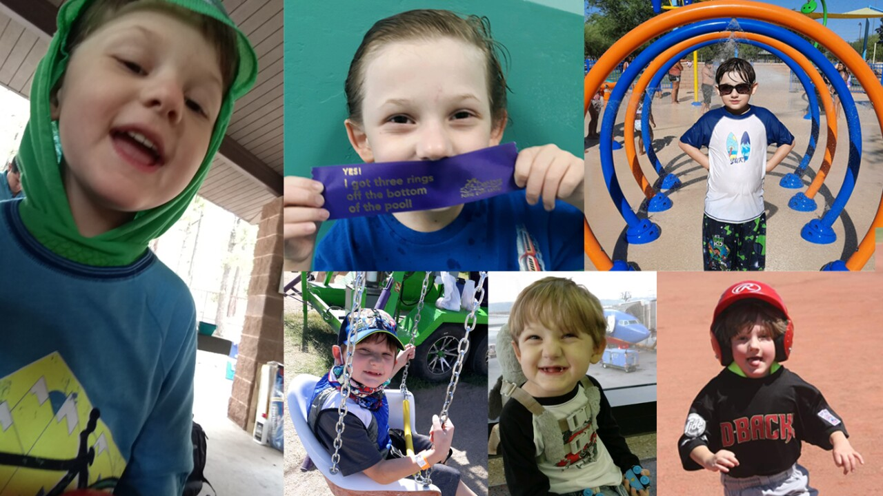 8-year-old Nekoda Tibbitts has ectodermal dysplasia