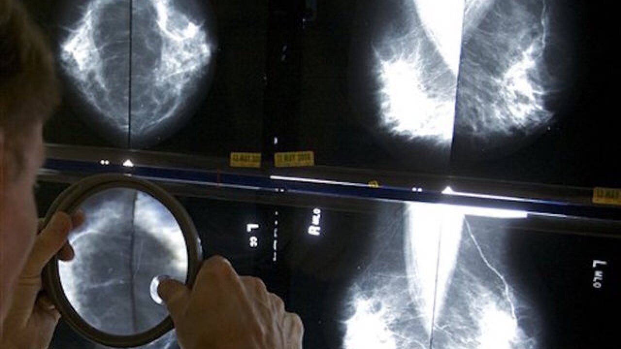 Task force: Mammograms do more good at 50