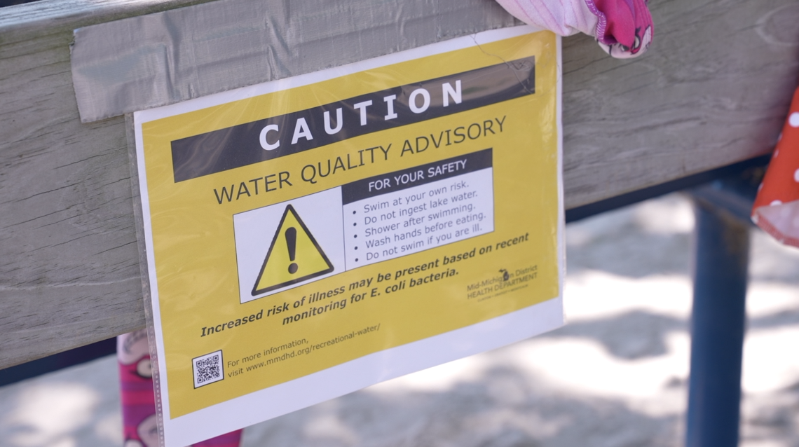 Park Lake swim advisory